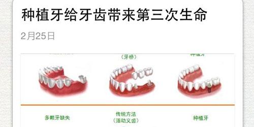 """""""民营口腔医院""""微信营销怎么做?"""
